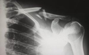 An x-ray of a broken collar bone